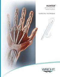 Hunters Passive Tendon Implants
