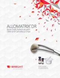 AlloMatrix DR - Osteoinductive Grafting Solutions