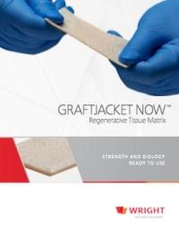 Graftjacket - Augmentation Graft