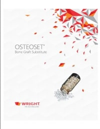 Osteaset Bone Graft Substitute