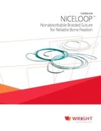 Tornier Nice Loop